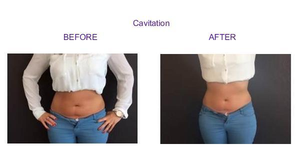 cavitation1