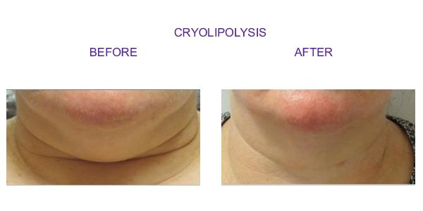 cryolipolysis1