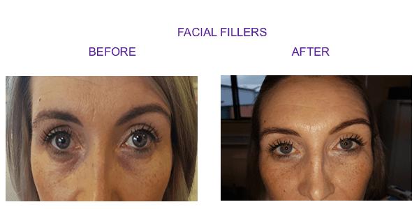 facial-new1