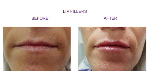 lip-new1