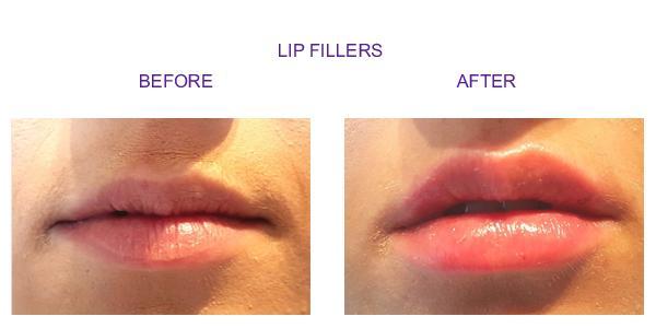 lip-new2