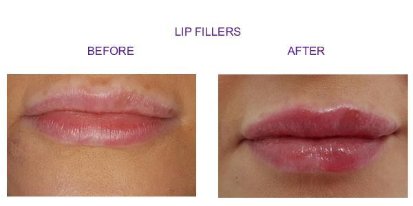 lip-new3